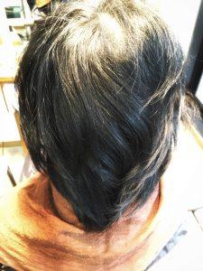 抗がん剤 脱毛 かつら