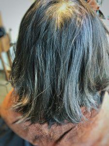 抗がん剤 薄毛 白髪 クセ毛