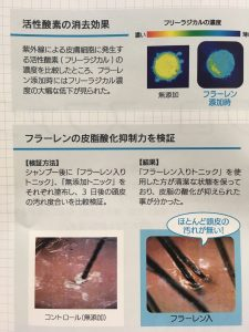 過酸化脂質 薄毛 皮脂 ハゲ