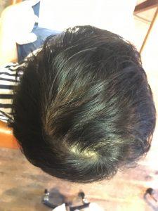 育毛 発毛 効果 女性 分け目 抜け毛