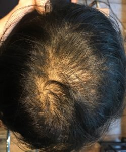 女性の薄毛の原因 育毛