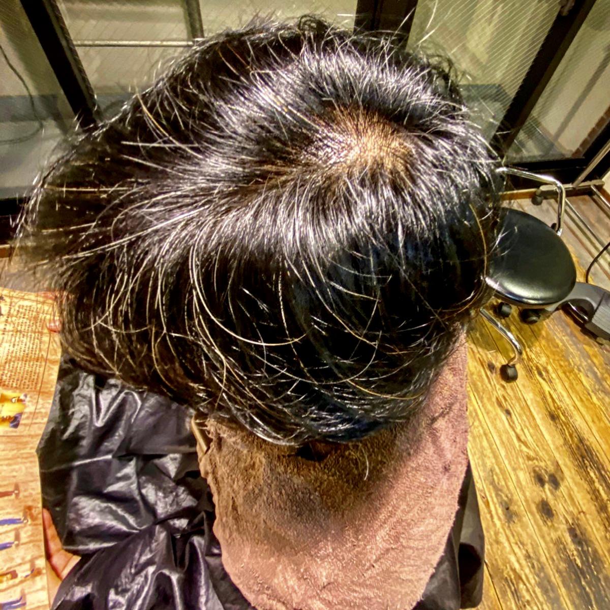 育毛 効果 薄毛 改善
